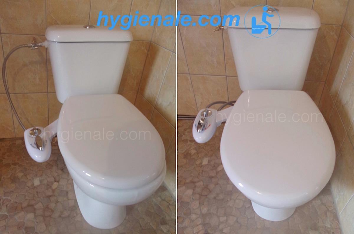 Le kit abattant japonais permet d'installer un wc lavant